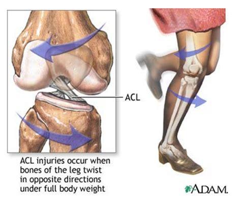 cruciate ligament tear anterior cruciate ligament injury