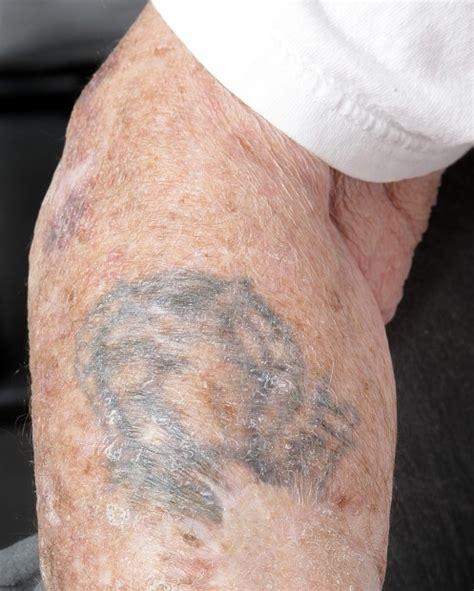 korean war tattoo veteran carries wwii tattoos on to korea vietnam local