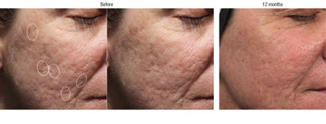 Acne And Detoxing From Heroin by Acne Scar Filler Before And After Photos Irvine