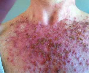 image gallery skin scabs