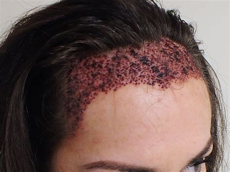 hair transplant for black women is hair transplant for women effective results fue or