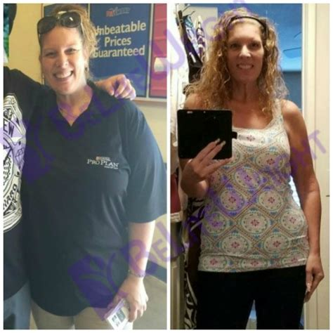weight loss 6 months after gastric sleeve professional weight loser tonia s one year sleeve success