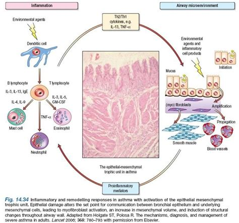 Children Of The Mechanism pathophysiology of bronchial asthma what happens in asthma