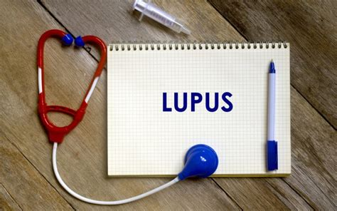 how you fight fatigue with corrective exercises lupus news today