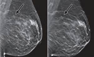 Mediolateral oblique images for digital mammography left and