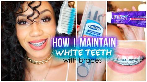braces colors that make teeth whiter how i maintain white teeth with braces