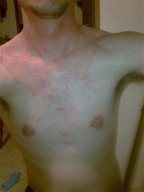 undiagnosed non itchy body skin rash