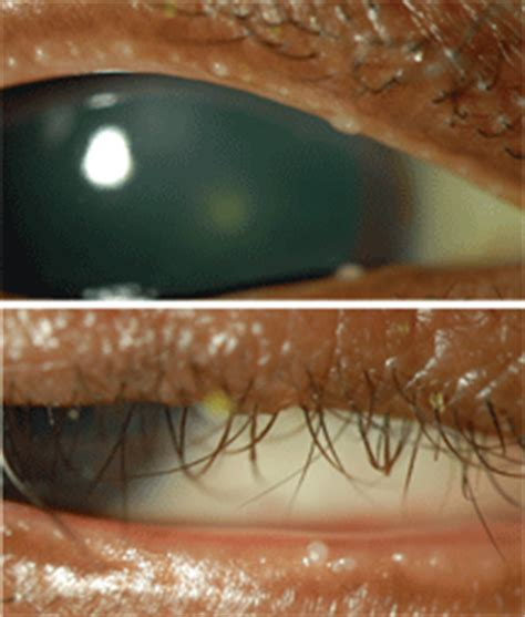 how to squeeze s glands put the squeeze on meibomian gland disease