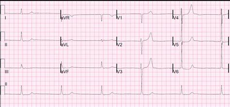 Bradycardia Image