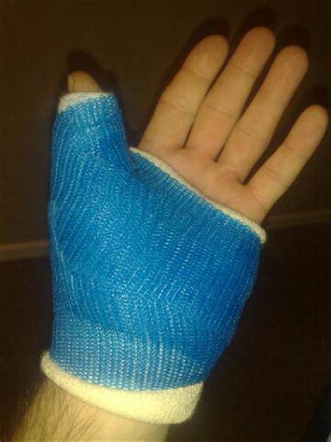 Casing Custom Finger custom arm covers