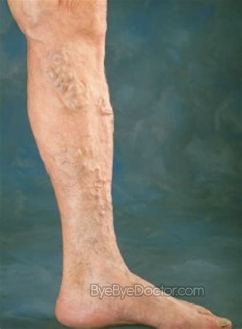 varicose veins treatment symptoms causes pictures varicose veins treatment symptoms causes pictures