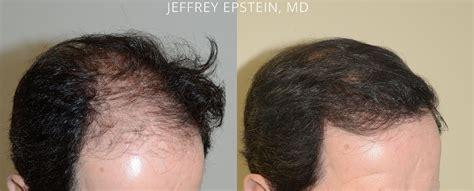 hair plugs for men hair transplants for men photos miami fl patient 47693