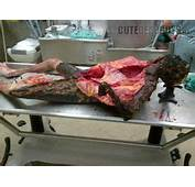 Autopsy Photos On Pinterest  Crime Scene And