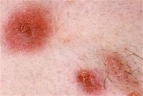 skin infection home remedy best remedies for staph infection on skin