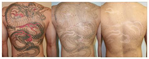 laser tattoo removal san diego tattoo removal los