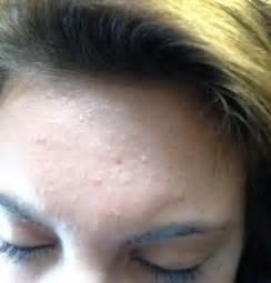 does hair bumps hurt bumps on forehead causes small itchy not pimples after