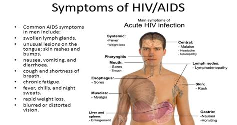 symptoms of hiv aids infection aids secretariat cautions revelers against the rant