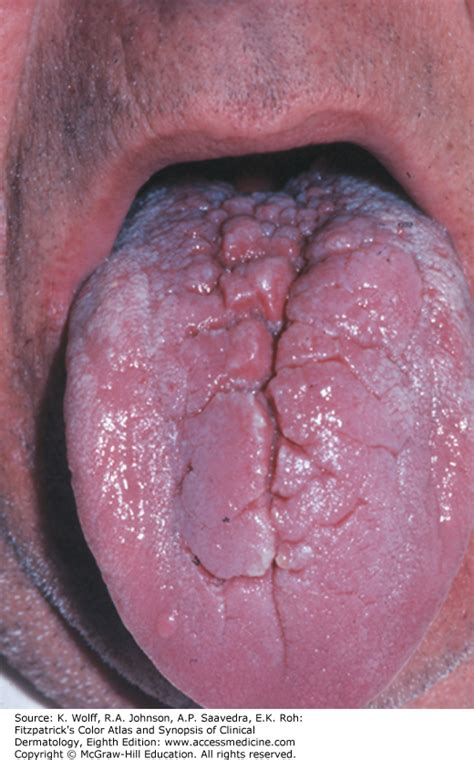 carcinoma floor of the floor of squamous cell carcinoma icd 10 wikizie co