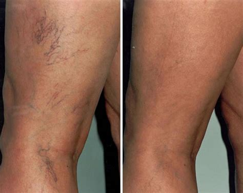 before after vein removal14 beauty boutique hampstead