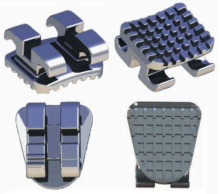 Bracket Mini Edgewise Protect Best Seller sell mim edgewise brackets id 10735384 ec21