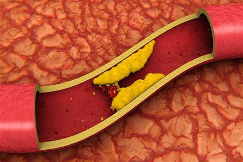 colesterolo alimenti per abbassarlo colesterolo cattivo ldl come prevenirlo e abbassarlo