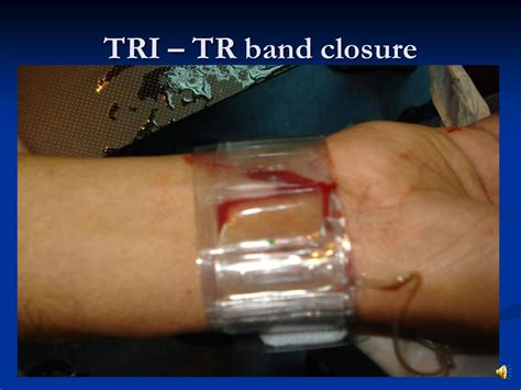 tr band transradial interventions local perspective ppt video