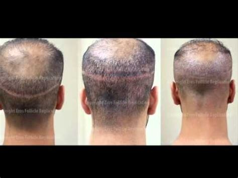 cover scars from hair transplant eros follicle replication hair transplant scar cover up