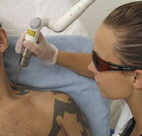 tattoo removal boulder risks of non laser removal methods
