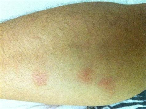 can bed bugs cause hives 28 images bed bug rash