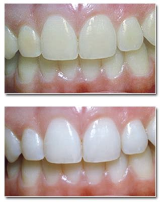 Dr Whitening Care Orioginal Pux2 teeth whitening palos heights dentist orland dentist