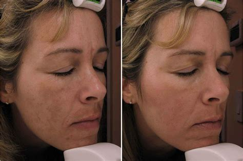 melasma treatment in philadelphia hyperpigmentation main line