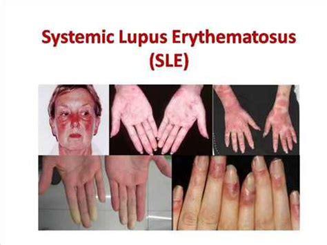 sle of will systemic lupus erythematosus sle causes signs symptoms treatment