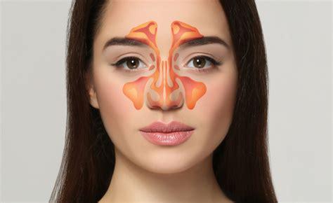 mal di testa rimedi omeopatici sinusite addio con i rimedi omeopatici pazienti it