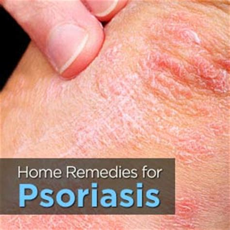 home remedies for psoriasis treatment cure remedy