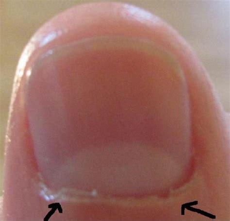 Envies Ongles petites peaux autour des ongles quot envies quot vos astuces