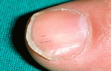 dark line on fingernail nail bed abnormalities awesome nail