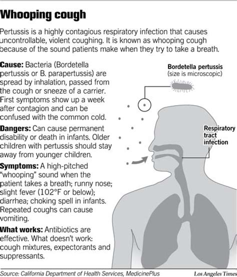 whooping couch symptoms whooping cough pertussis what you need to know mybelize net