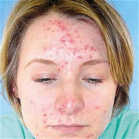 Acnes Spot treatment for acne spots how to treat acne spots home remedies