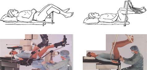 tur p lithotomy position related keywords lithotomy position