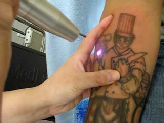 how to remove a fresh tattoo how to clear and remove tattoos with the new laser q switch