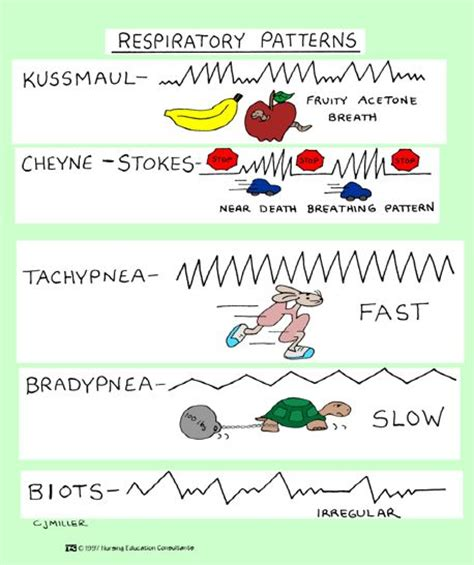 breathing pattern in heart failure 1000 images about learn to be a nurse on pinterest