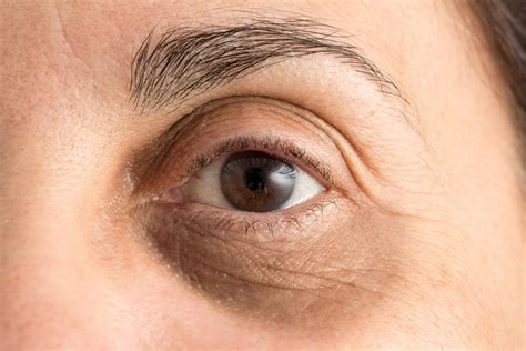 black under eye 10 natural ways to get rid of dark circles under eyes