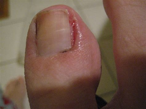 Removing Ingrown Toenail At Home by Photo