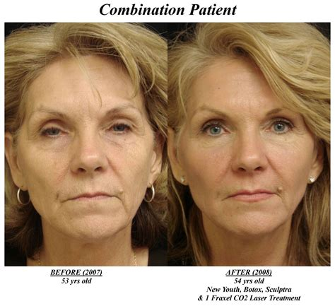 3x Laser Rejuvenation Treatment before after photos archives new youth skin care