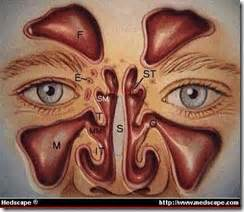 medicina sem segredo sinusites
