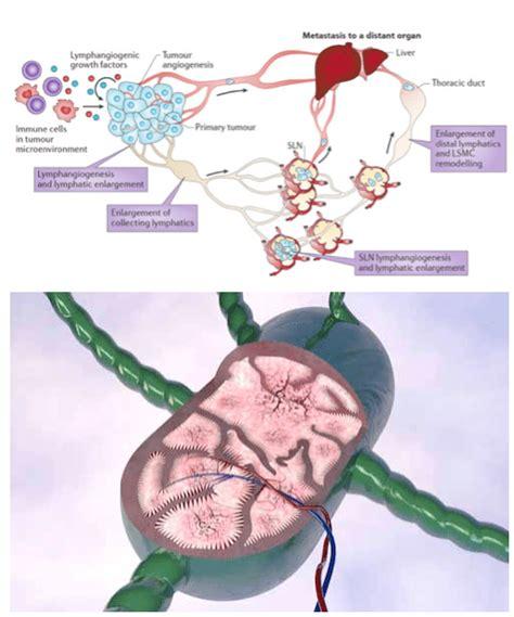 Ire Und Ect Lymphknotenmetastasen Vitus Prostata Center