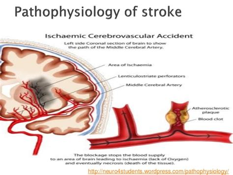 stroke call 911 clot buster for stroke books cva