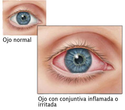 imagenes ojos con conjuntivitis la conjuntivitis ojo rosado signos y sntomas cdc