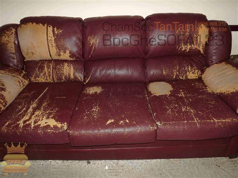 My Leather Sofa Is Peeling Ghế Sofa L 192 1 ổ Vi Khuẩn Trong Ph 210 Ng Kh 193 Ch Của Bạn Bọc