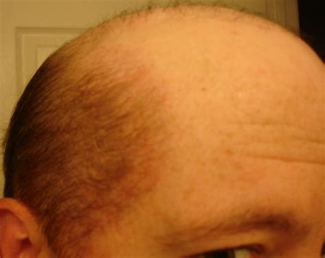 how to get thicker pubic hair female pubic hair growth pubic hair development female
